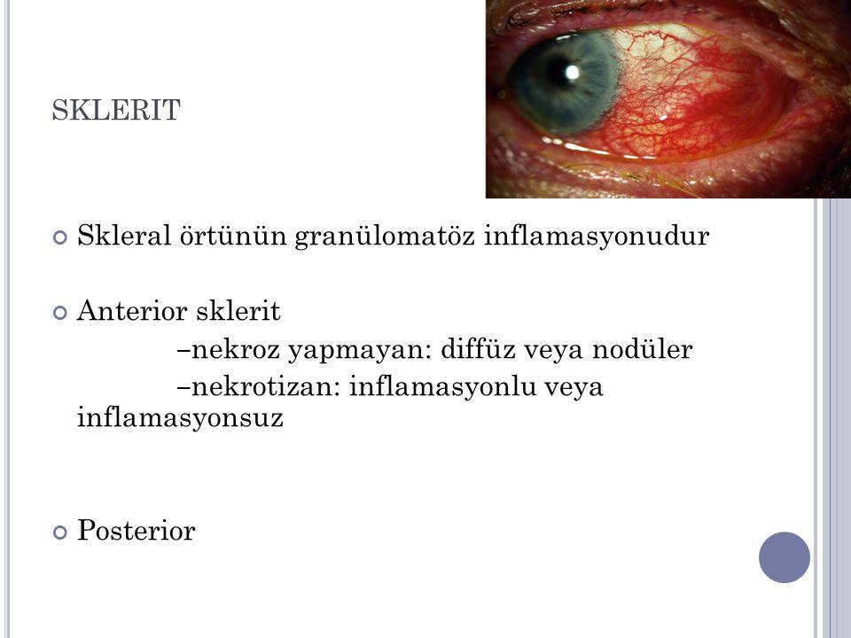 SKLERIT Skleral örtünün granülomatöz inflamasyonudur Anterior sklerit ‒ nekroz yapmayan: diffüz veya nodüler ‒ nekrotizan: inflamasyonlu veya inflamasyonsuz Posterior