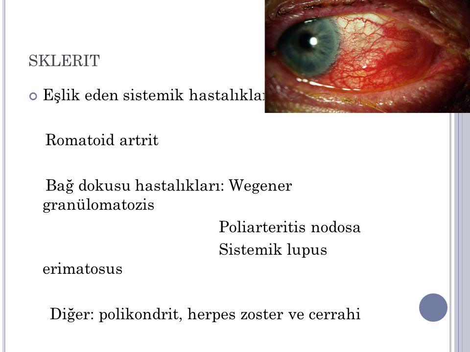 SKLERIT Eşlik eden sistemik hastalıklar Romatoid artrit Bağ dokusu hastalıkları: Wegener granülomatozis Poliarteritis nodosa Sistemik lupus erimatosus