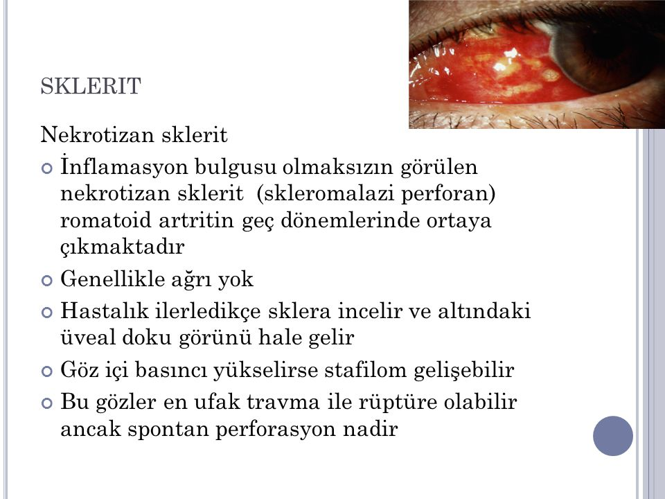 SKLERIT Nekrotizan sklerit İnflamasyon bulgusu olmaksızın görülen nekrotizan sklerit (skleromalazi perforan) romatoid artritin geç dönemlerinde ortaya