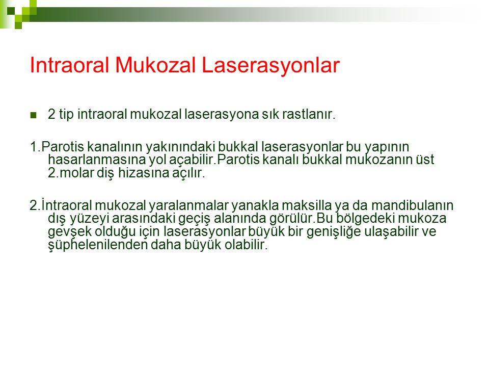 Intraoral Mukozal Laserasyonlar 2 tip intraoral mukozal laserasyona sık rastlanır.