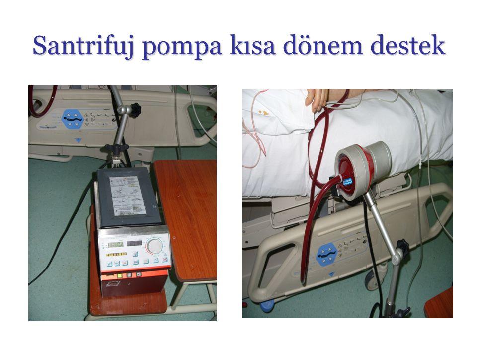 Santrifuj pompa kısa dönem destek