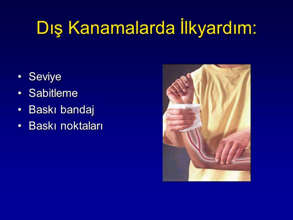 SeviyeSeviye SabitlemeSabitleme Baskı bandajBaskı bandaj Baskı noktalarıBaskı noktaları