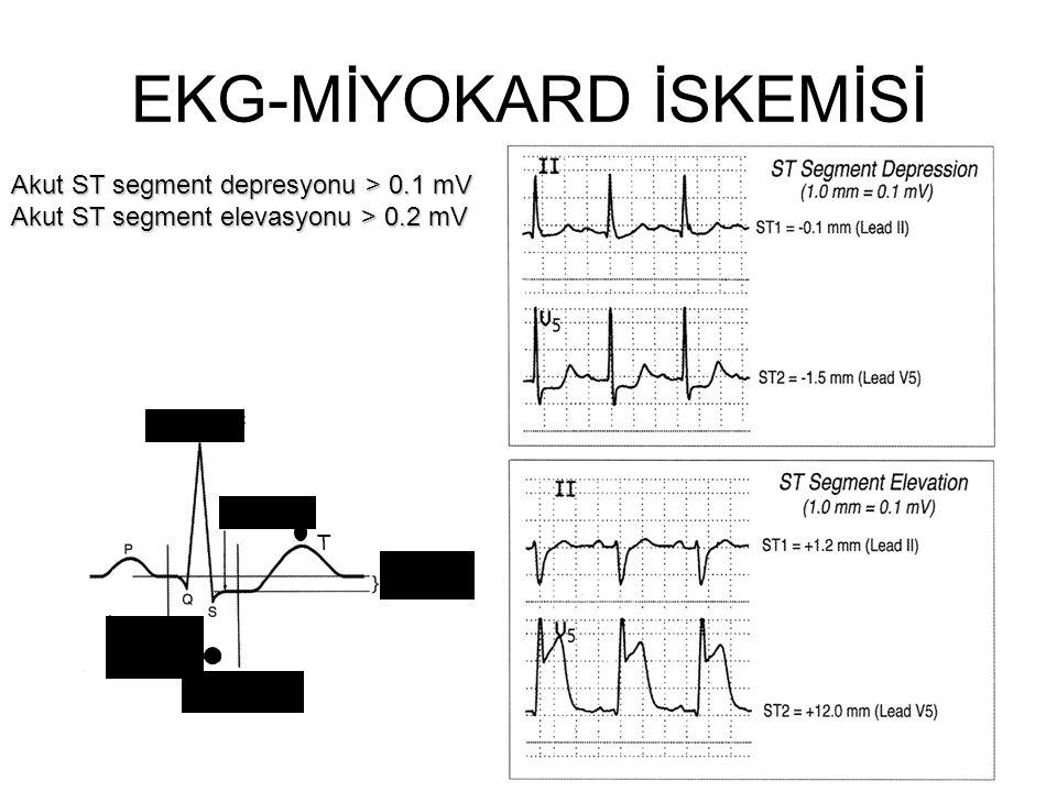 EKG-MİYOKARD İSKEMİSİ R dalgası J noktası T Fark= ST değeri İzoelektrik nokta ST segment ölçüm noktası Akut ST segment depresyonu > 0.1 mV Akut ST seg