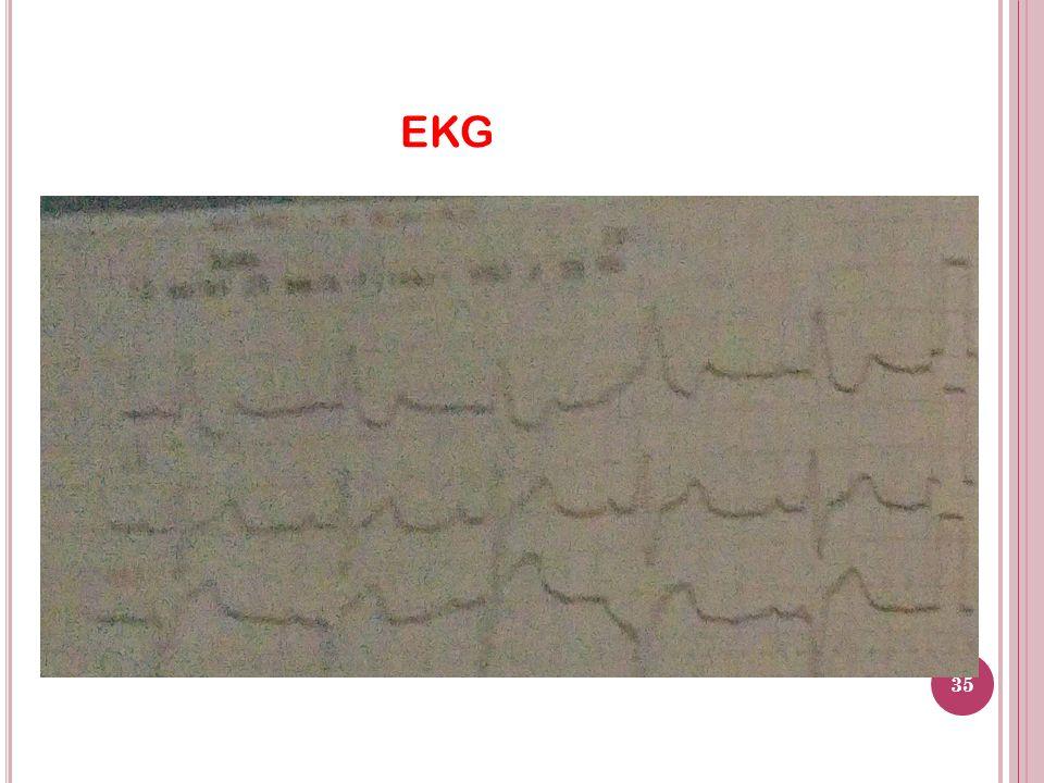 EKG 35