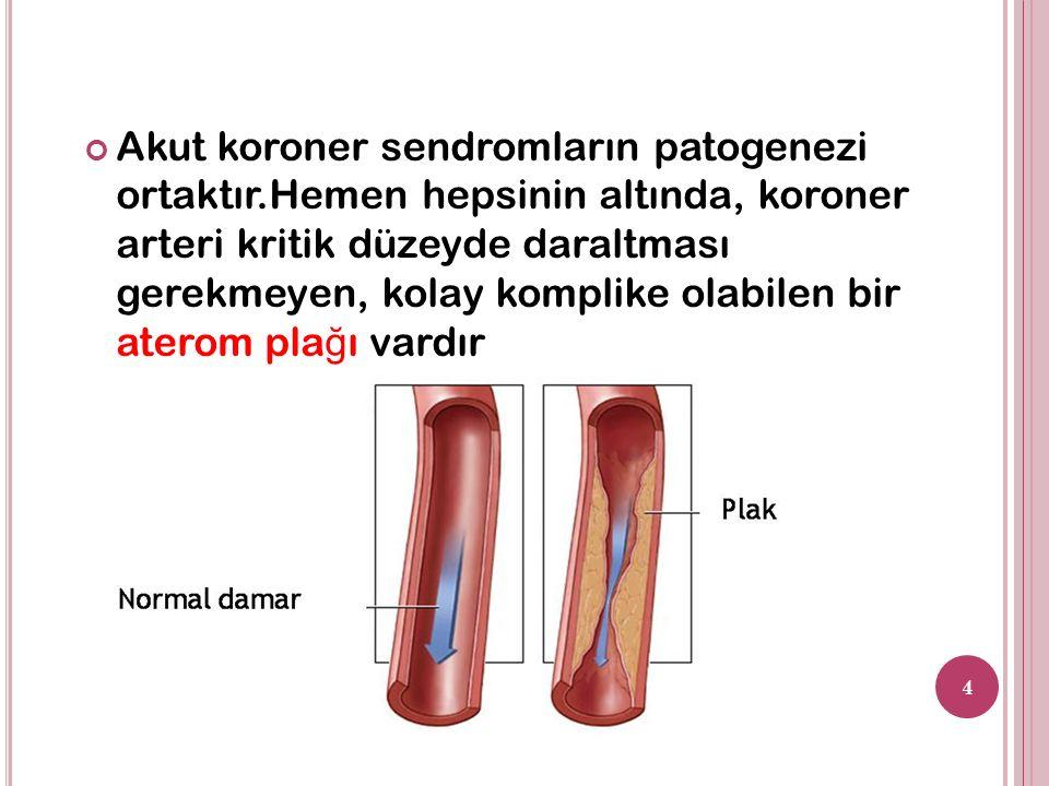 Akut koroner sendromların patogenezi ortaktır.Hemen hepsinin altında, koroner arteri kritik düzeyde daraltması gerekmeyen, kolay komplike olabilen bir aterom pla ğ ı vardır 4