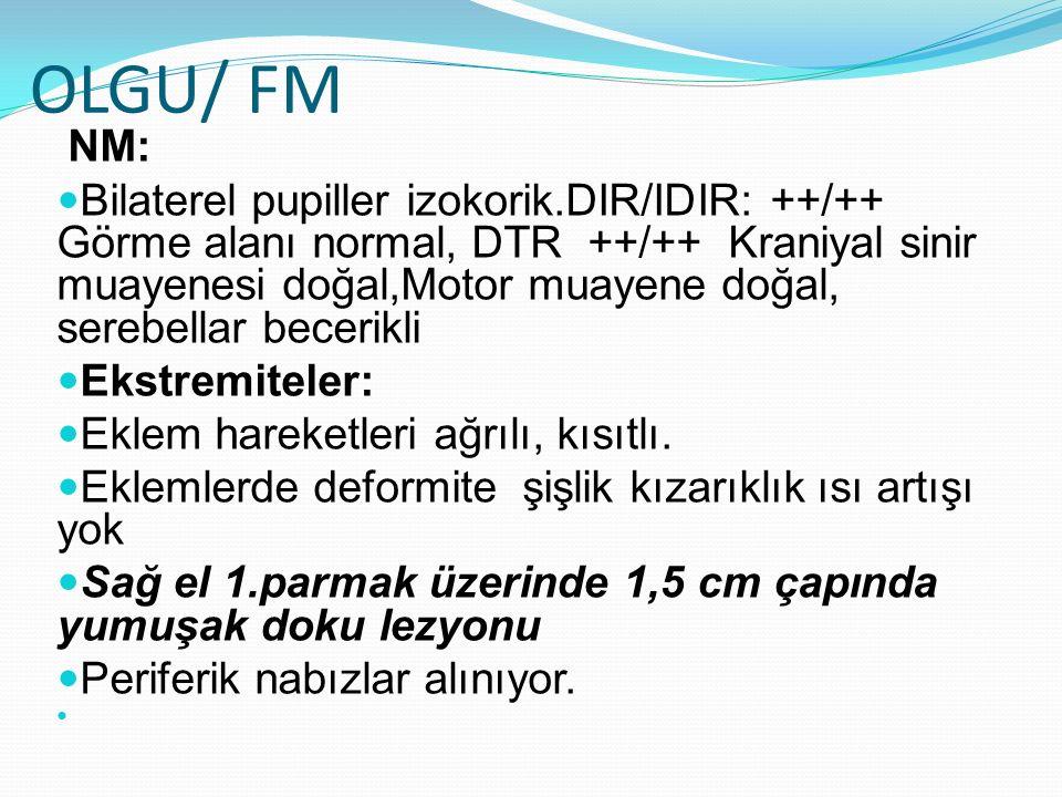 OLGU/ FM NM: Bilaterel pupiller izokorik.DIR/IDIR: ++/++ Görme alanı normal, DTR ++/++ Kraniyal sinir muayenesi doğal,Motor muayene doğal, serebellar