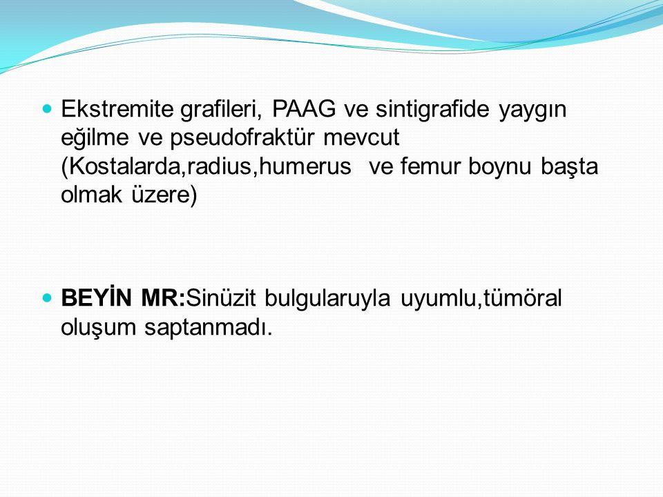 Ekstremite grafileri, PAAG ve sintigrafide yaygın eğilme ve pseudofraktür mevcut (Kostalarda,radius,humerus ve femur boynu başta olmak üzere) BEYİN MR