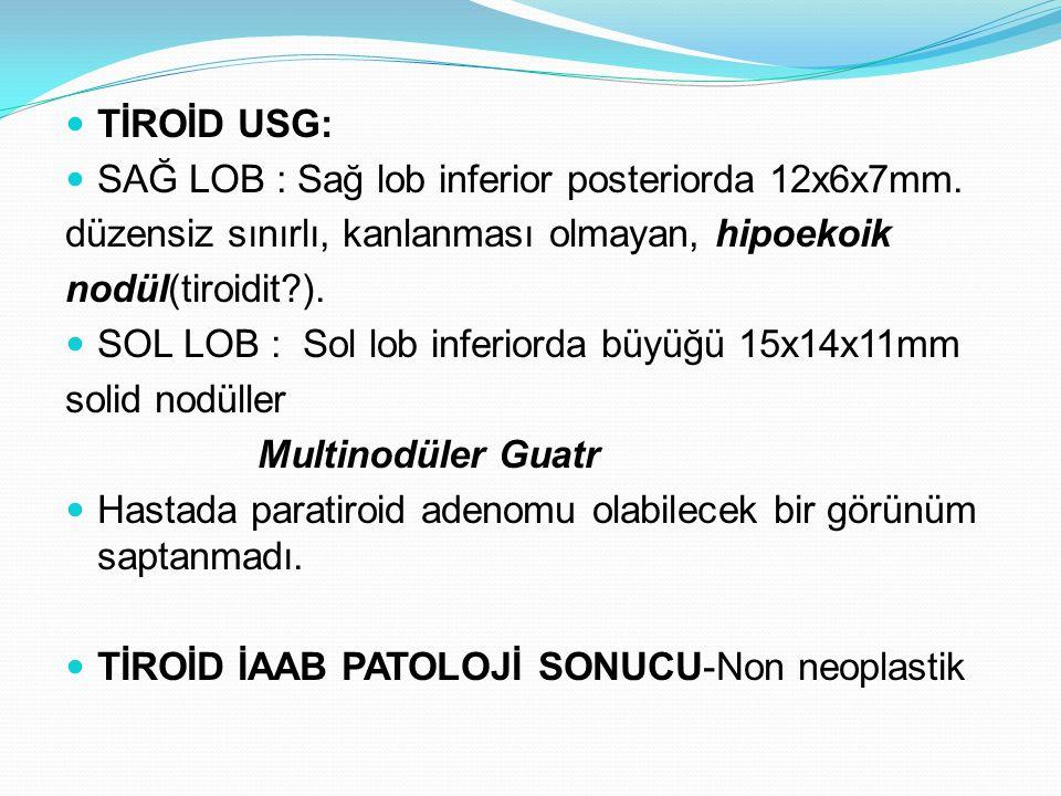 TİROİD USG: SAĞ LOB : Sağ lob inferior posteriorda 12x6x7mm. düzensiz sınırlı, kanlanması olmayan, hipoekoik nodül(tiroidit?). SOL LOB : Sol lob infer