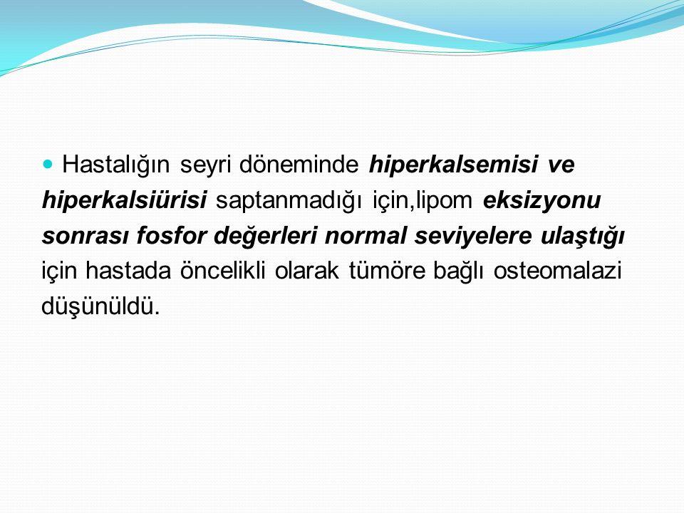 Hastalığın seyri döneminde hiperkalsemisi ve hiperkalsiürisi saptanmadığı için,lipom eksizyonu sonrası fosfor değerleri normal seviyelere ulaştığı içi