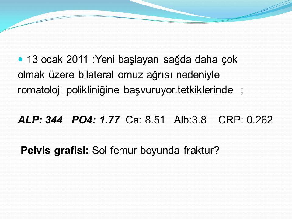 13 ocak 2011 :Yeni başlayan sağda daha çok olmak üzere bilateral omuz ağrısı nedeniyle romatoloji polikliniğine başvuruyor.tetkiklerinde ; ALP: 344 PO