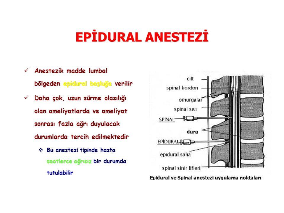 EPİDURAL ANESTEZİ Anestezik madde lumbal bölgeden epidural boşluğa verilir Anestezik madde lumbal bölgeden epidural boşluğa verilir Daha çok, uzun sür
