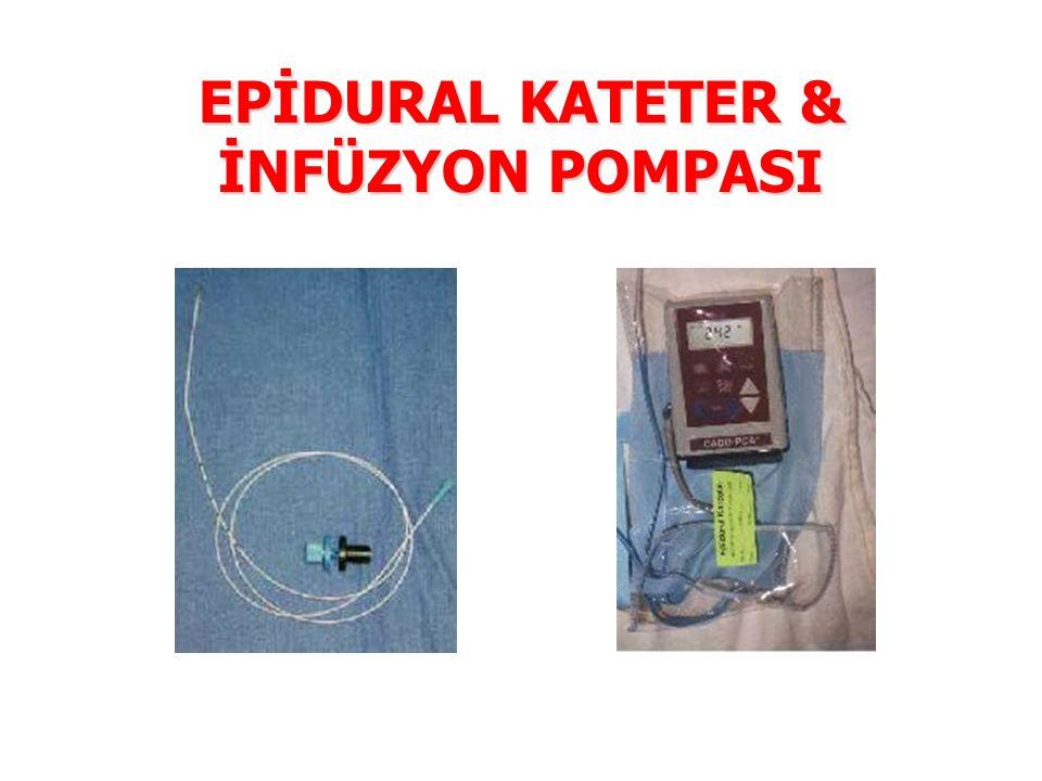 EPİDURAL KATETER & İNFÜZYON POMPASI