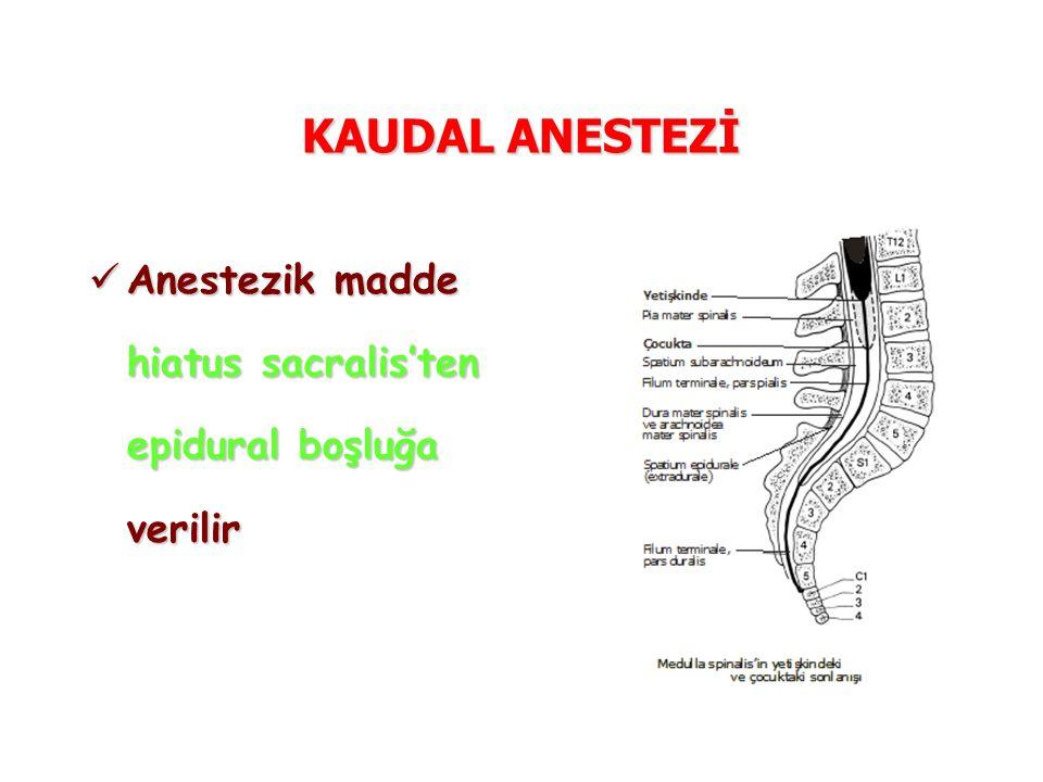 KAUDAL ANESTEZİ Anestezik madde hiatus sacralis'ten epidural boşluğa verilir Anestezik madde hiatus sacralis'ten epidural boşluğa verilir