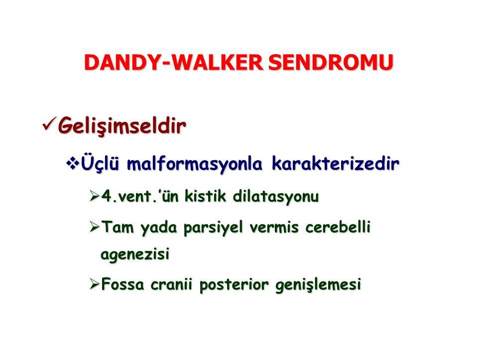 DANDY-WALKER SENDROMU Gelişimseldir Gelişimseldir  Üçlü malformasyonla karakterizedir  4.vent.'ün kistik dilatasyonu  Tam yada parsiyel vermis cerebelli agenezisi  Fossa cranii posterior genişlemesi