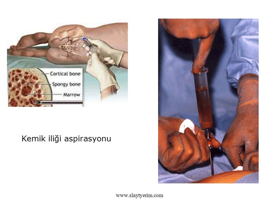 www.slaytyerim.com Kemik iliği aspirasyonu