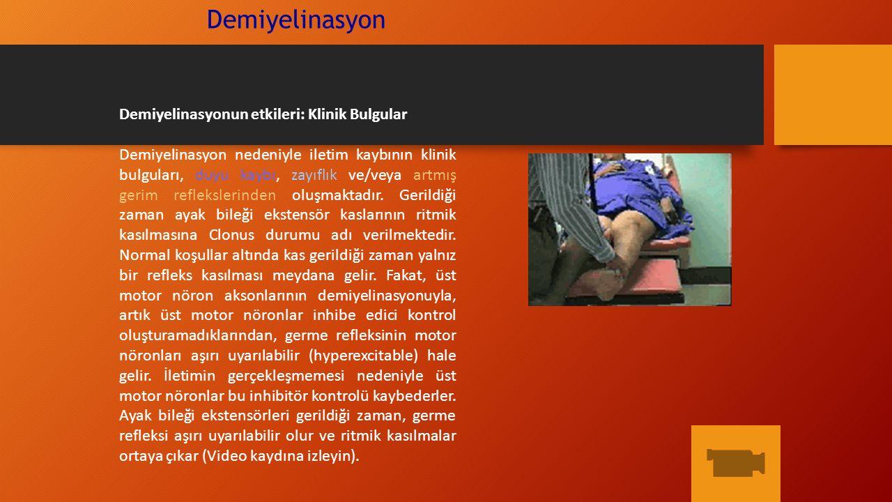 Demiyelinasyon Demiyelinasyonun etkileri: Klinik Bulgular Demiyelinasyon nedeniyle iletim kaybının klinik bulguları, duyu kaybı, zayıflık ve/veya artm