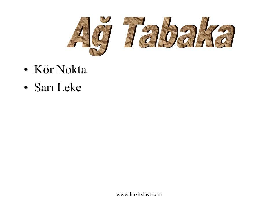 www.hazirslayt.com Kör Nokta Sarı Leke