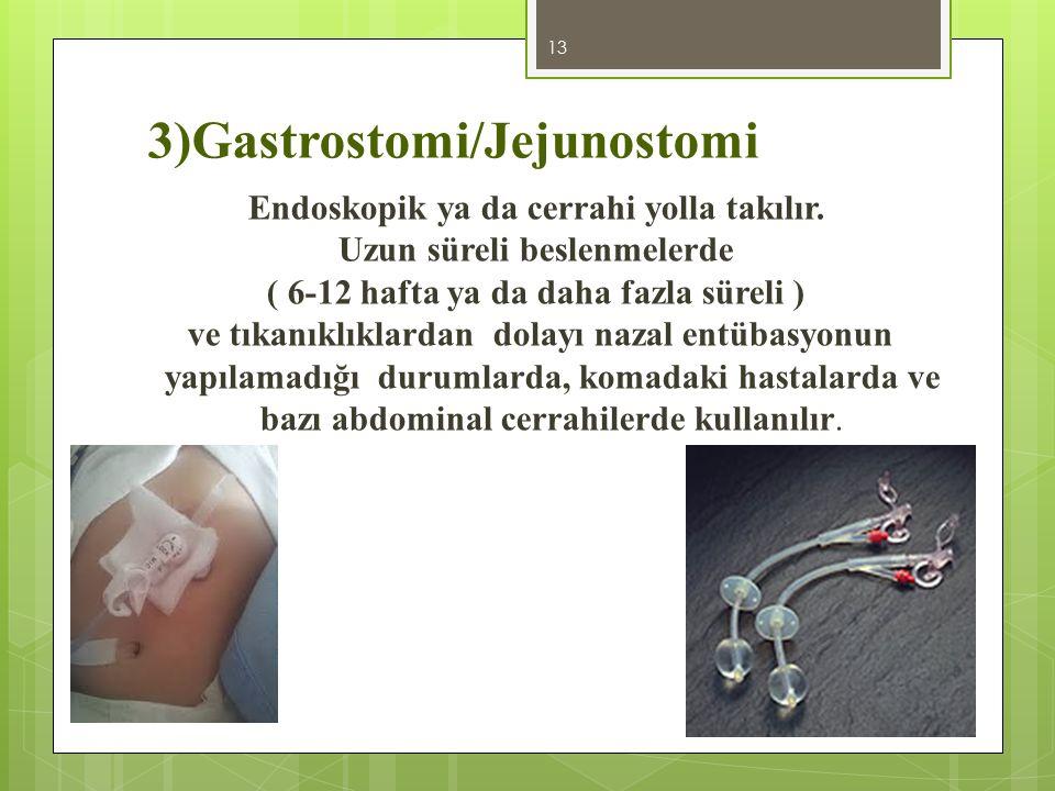 3)Gastrostomi/Jejunostomi Endoskopik ya da cerrahi yolla takılır. Uzun süreli beslenmelerde ( 6-12 hafta ya da daha fazla süreli ) ve tıkanıklıklardan