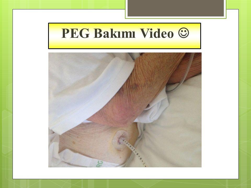 PEG Bakımı Video