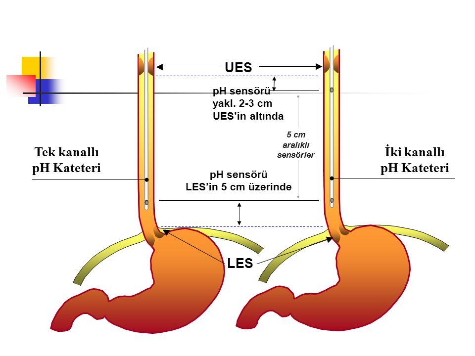 LES UES Tek kanallı pH Kateteri İki kanallı pH Kateteri pH sensörü LES'in 5 cm üzerinde pH sensörü yakl. 2-3 cm UES'in altında 5 cm aralıklı sensörler