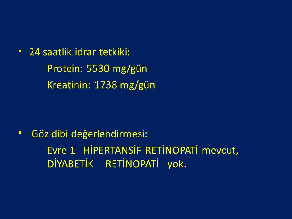 24 saatlik idrar tetkiki: Protein: 5530 mg/gün Kreatinin: 1738 mg/gün Göz dibi değerlendirmesi: Evre 1 HİPERTANSİF RETİNOPATİ mevcut, DİYABETİK RETİNO