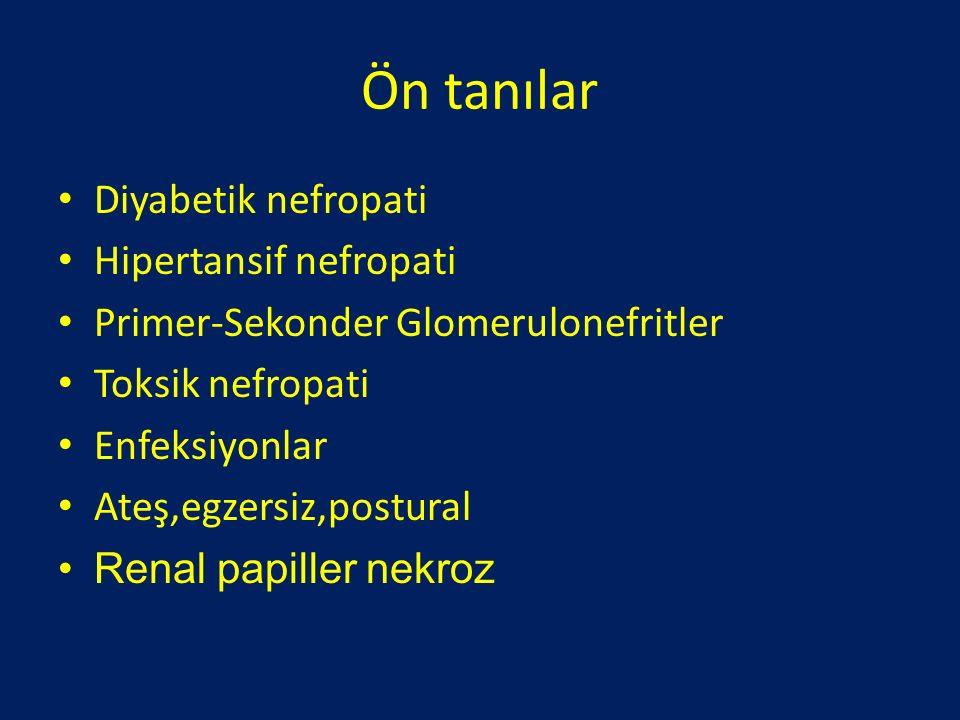 Ön tanılar Diyabetik nefropati Hipertansif nefropati Primer-Sekonder Glomerulonefritler Toksik nefropati Enfeksiyonlar Ateş,egzersiz,postural Renal pa