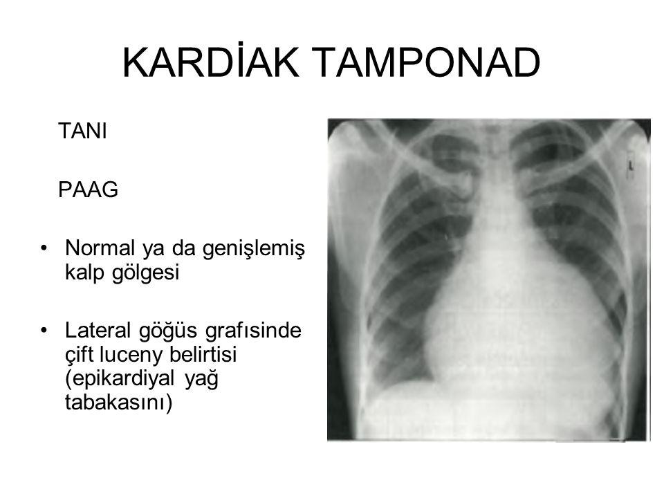 TANI PAAG Normal ya da genişlemiş kalp gölgesi Lateral göğüs grafısinde çift luceny belirtisi (epikardiyal yağ tabakasını)