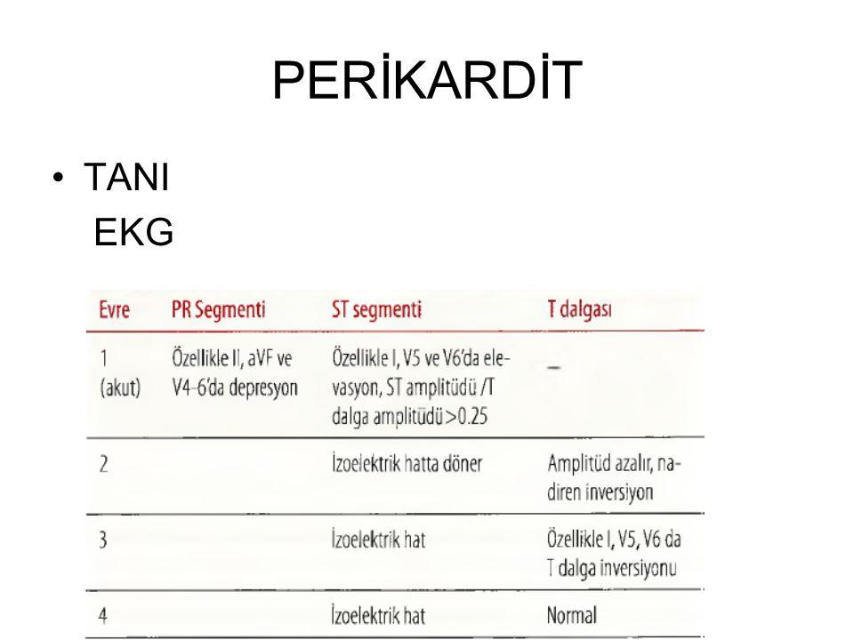 PERİKARDİT TANI Perikarditlerin çoğu idiopatiktir.