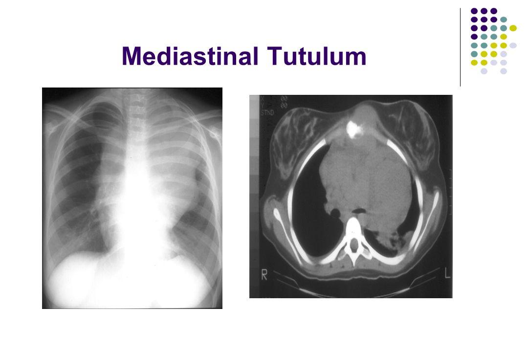 Mediastinal Tutulum