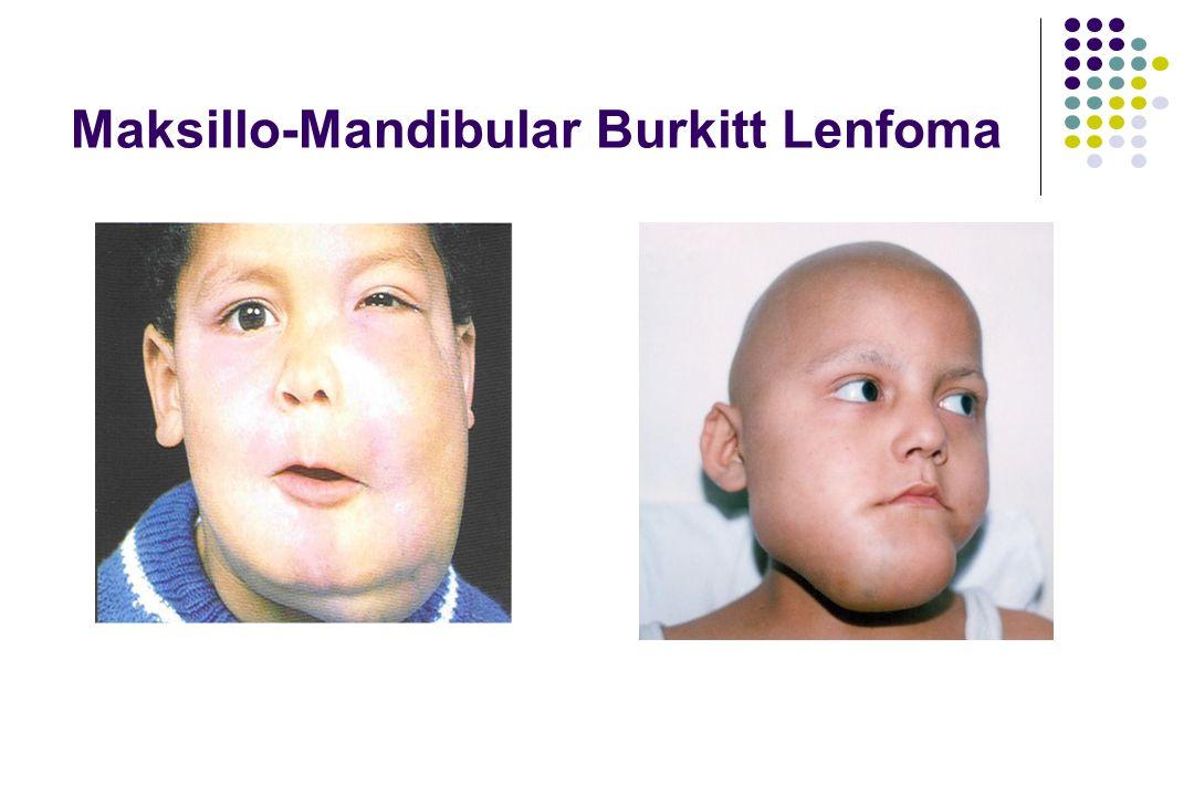 Maksillo-Mandibular Burkitt Lenfoma