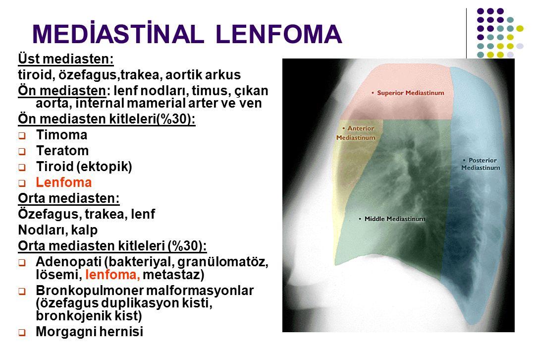 MEDİASTİNAL LENFOMA Üst mediasten: tiroid, özefagus,trakea, aortik arkus Ön mediasten: lenf nodları, timus, çıkan aorta, internal mamerial arter ve ve