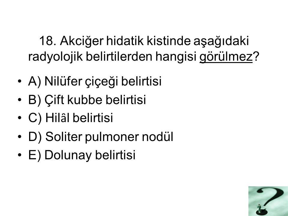 18. Akciğer hidatik kistinde aşağıdaki radyolojik belirtilerden hangisi görülmez.