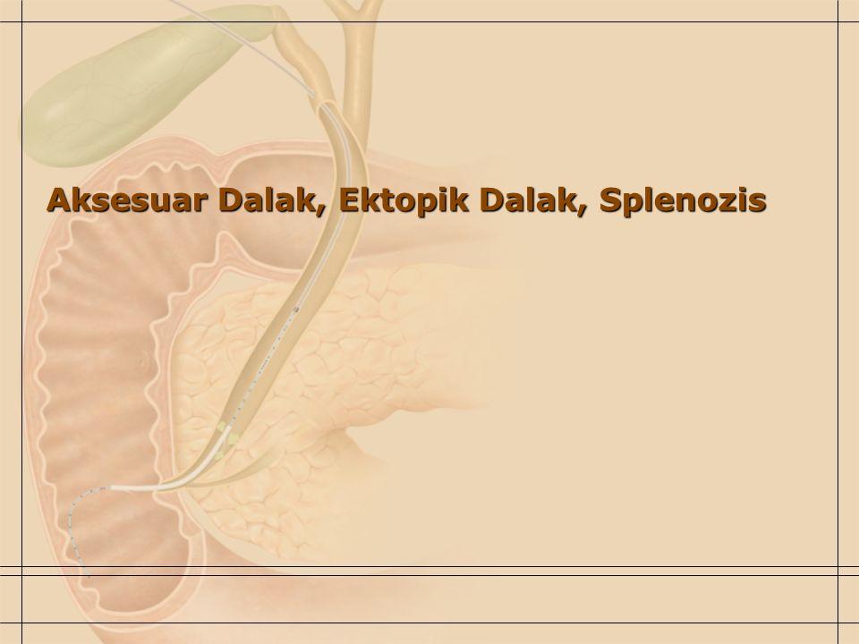 Aksesuar Dalak, Ektopik Dalak, Splenozis
