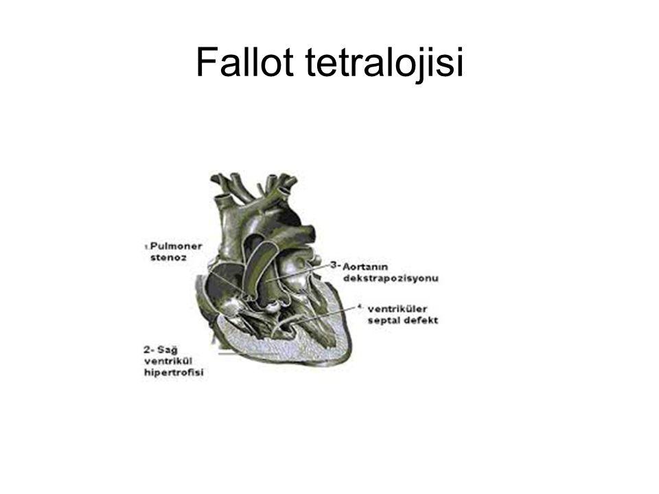 Fallot tetralojisi