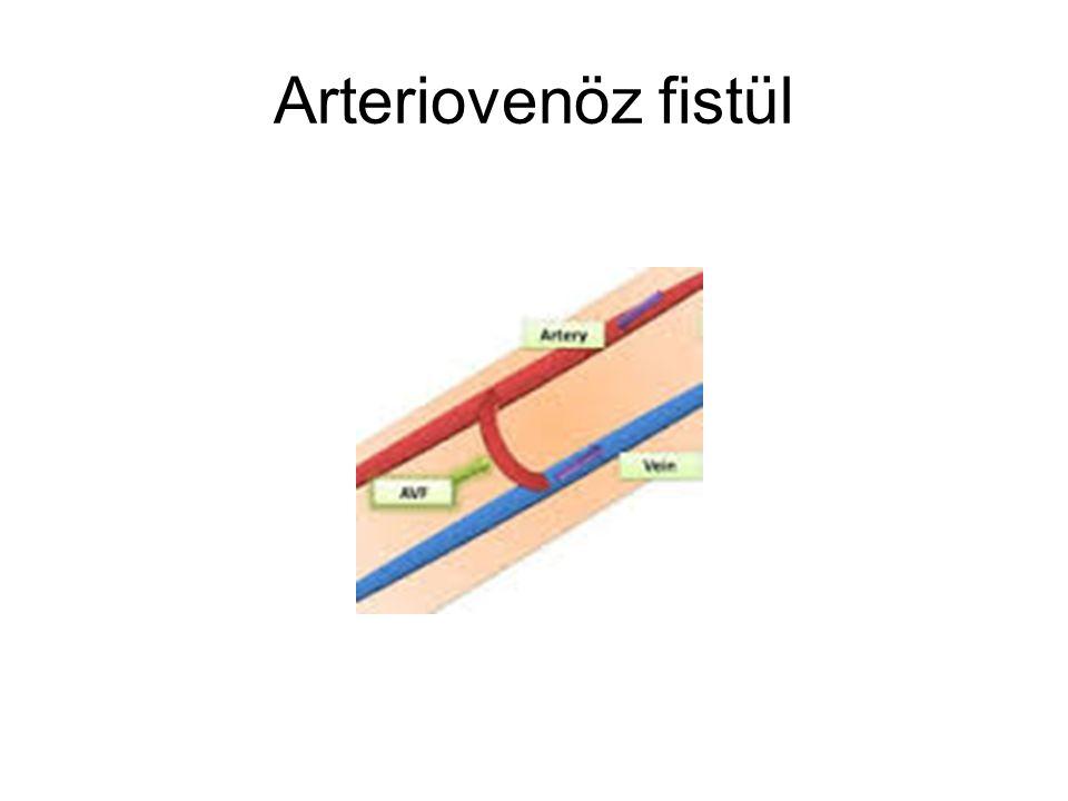 Arteriovenöz fistül