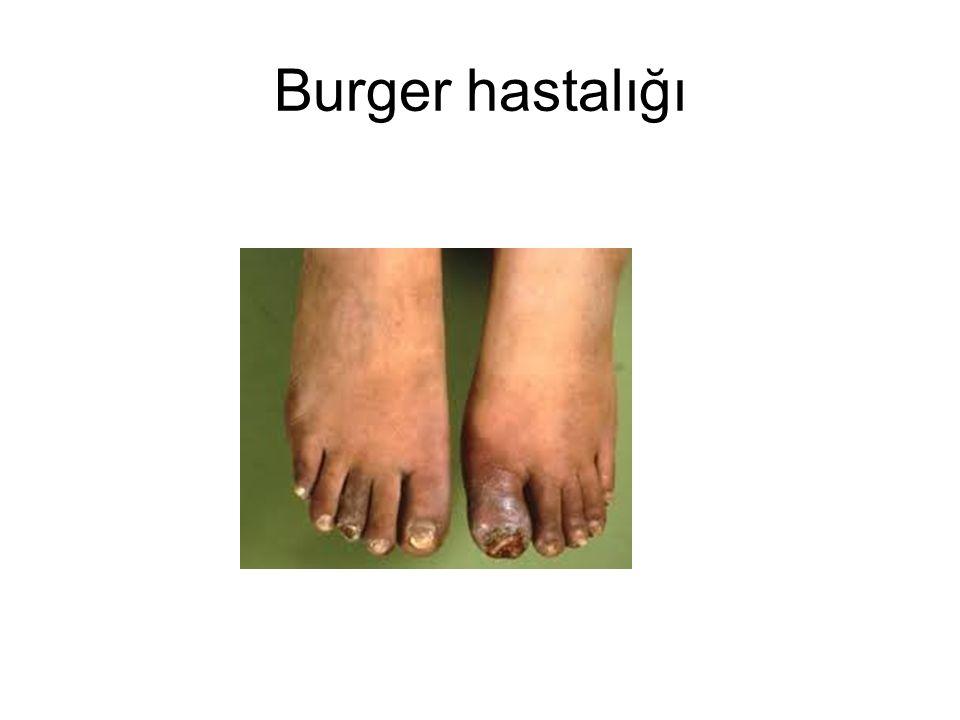 Burger hastalığı