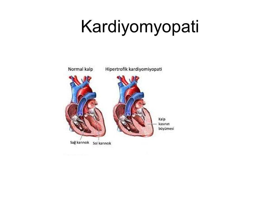 Kardiyomyopati