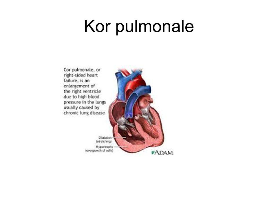 Kor pulmonale
