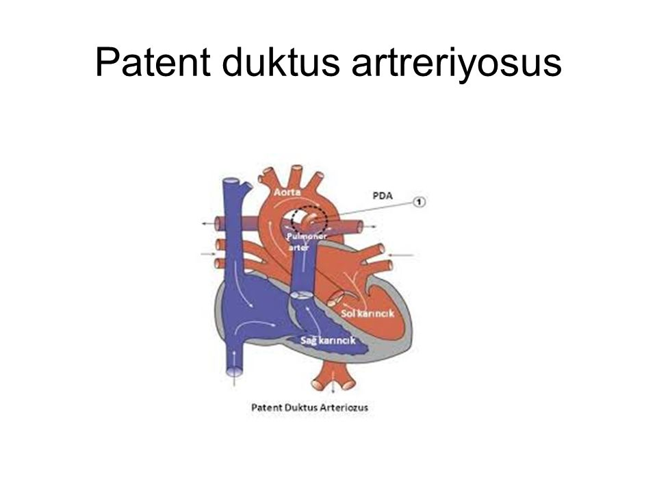 Patent duktus artreriyosus