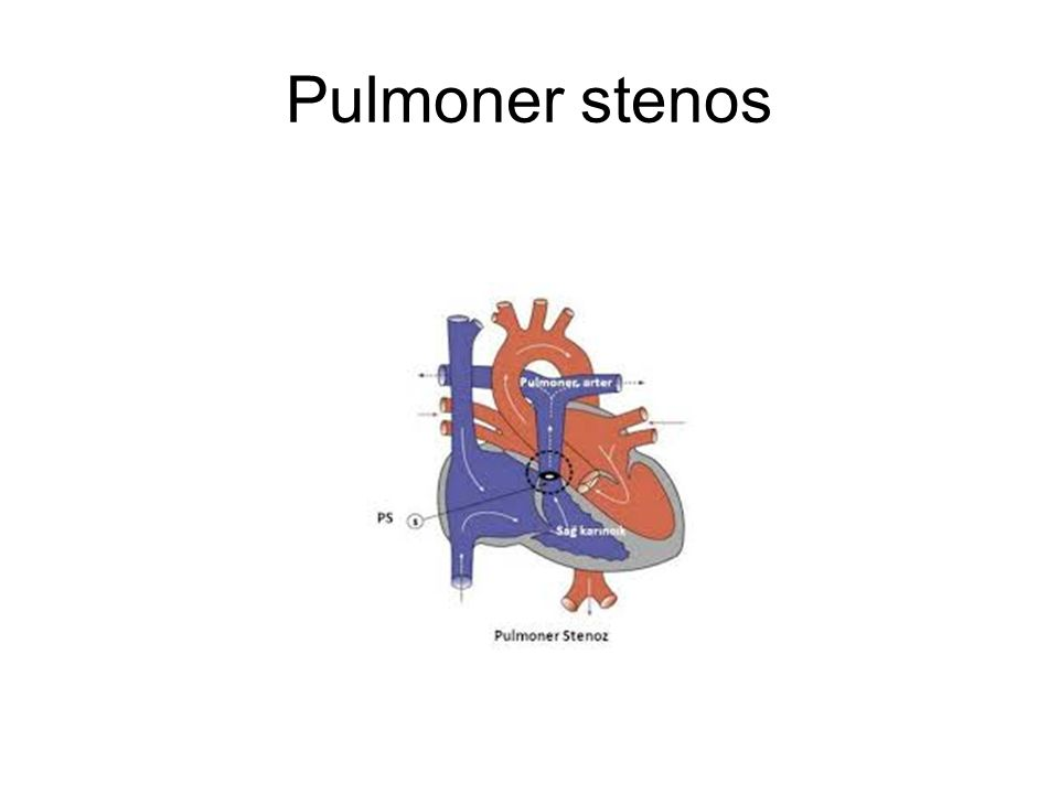 Pulmoner stenos