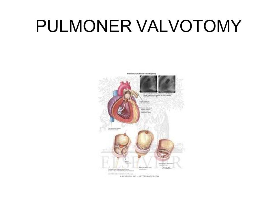 PULMONER VALVOTOMY