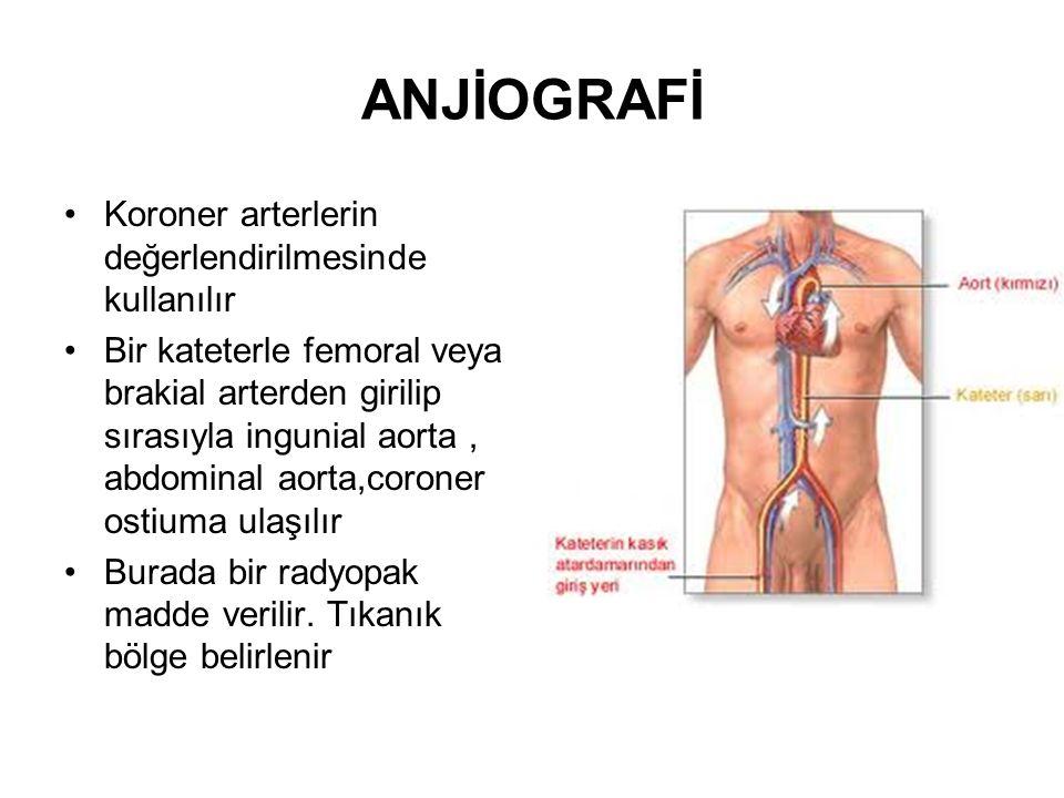ANJİOGRAFİ Koroner arterlerin değerlendirilmesinde kullanılır Bir kateterle femoral veya brakial arterden girilip sırasıyla ingunial aorta, abdominal
