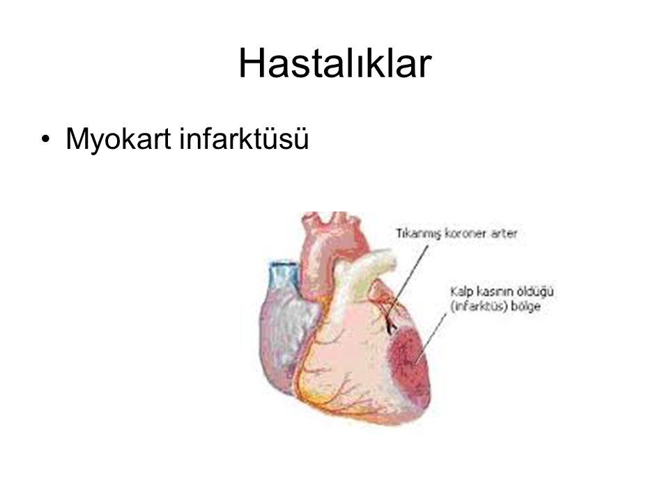 Hastalıklar Myokart infarktüsü