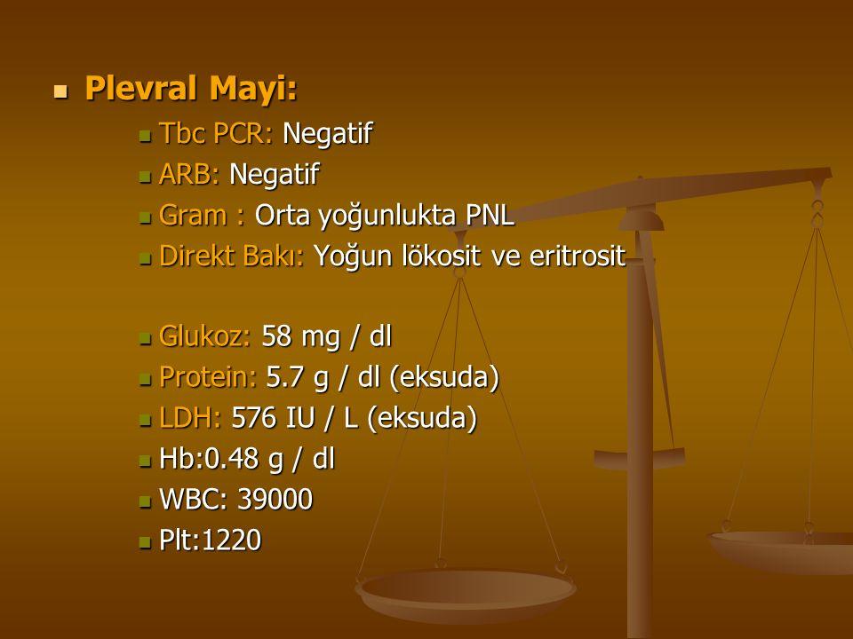 Plevral Mayi: Plevral Mayi: Tbc PCR: Negatif Tbc PCR: Negatif ARB: Negatif ARB: Negatif Gram : Orta yoğunlukta PNL Gram : Orta yoğunlukta PNL Direkt Bakı: Yoğun lökosit ve eritrosit Direkt Bakı: Yoğun lökosit ve eritrosit Glukoz: 58 mg / dl Glukoz: 58 mg / dl Protein: 5.7 g / dl (eksuda) Protein: 5.7 g / dl (eksuda) LDH: 576 IU / L (eksuda) LDH: 576 IU / L (eksuda) Hb:0.48 g / dl Hb:0.48 g / dl WBC: 39000 WBC: 39000 Plt:1220 Plt:1220