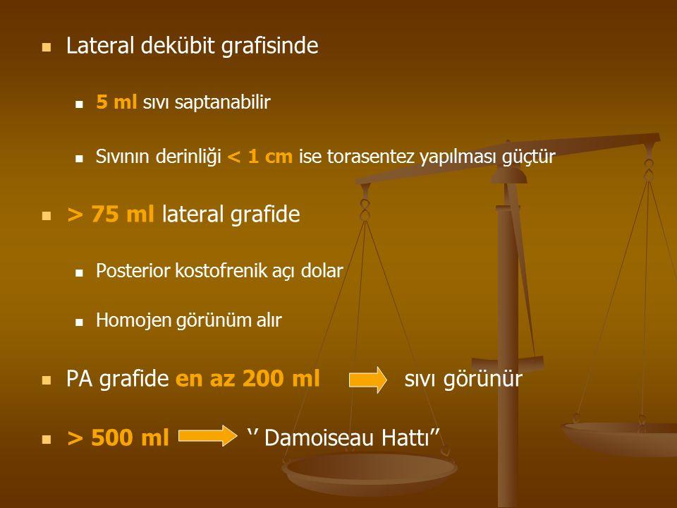 Lateral dekübit grafisinde 5 ml sıvı saptanabilir Sıvının derinliği < 1 cm ise torasentez yapılması güçtür > 75 ml lateral grafide Posterior kostofrenik açı dolar Homojen görünüm alır PA grafide en az 200 ml sıvı görünür > 500 ml '' Damoiseau Hattı''