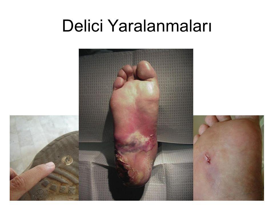 4 Patofizyoloji Doku yaralanması, kanama, cilt/cilt altı doku devitalizasyonu Batan cisimden ya da deriden kaynaklı organizma inokülasyonu Kolayca kapanan küçük yara Plantar yaralanmalarda % 6-11 enfeksiyon riski