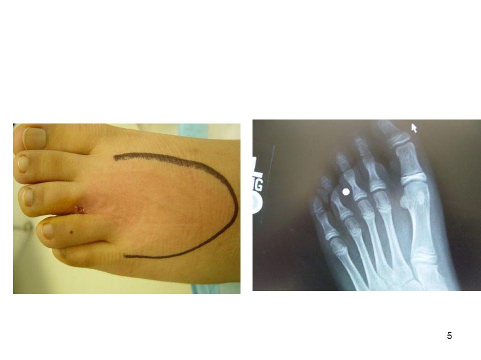 26 Yüksek Basınçlı Yaralanmalar Endüstriyel alet yaralanmaları Yüksek basınç deri laserasyonu ve kemik kırıklarına sebep olabilir Doku kompartmanlarındaki ani basınç artışı vasküler yaralanma, iskemik nekroz ve gangrene neden olabilir Genelde dominant olmayan el