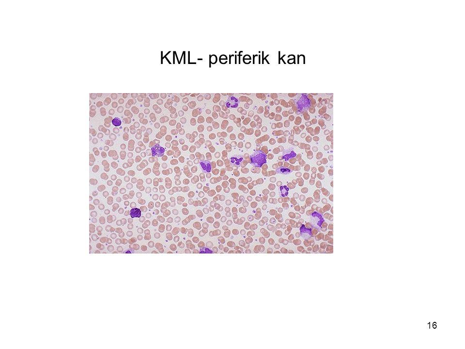 16 KML- periferik kan