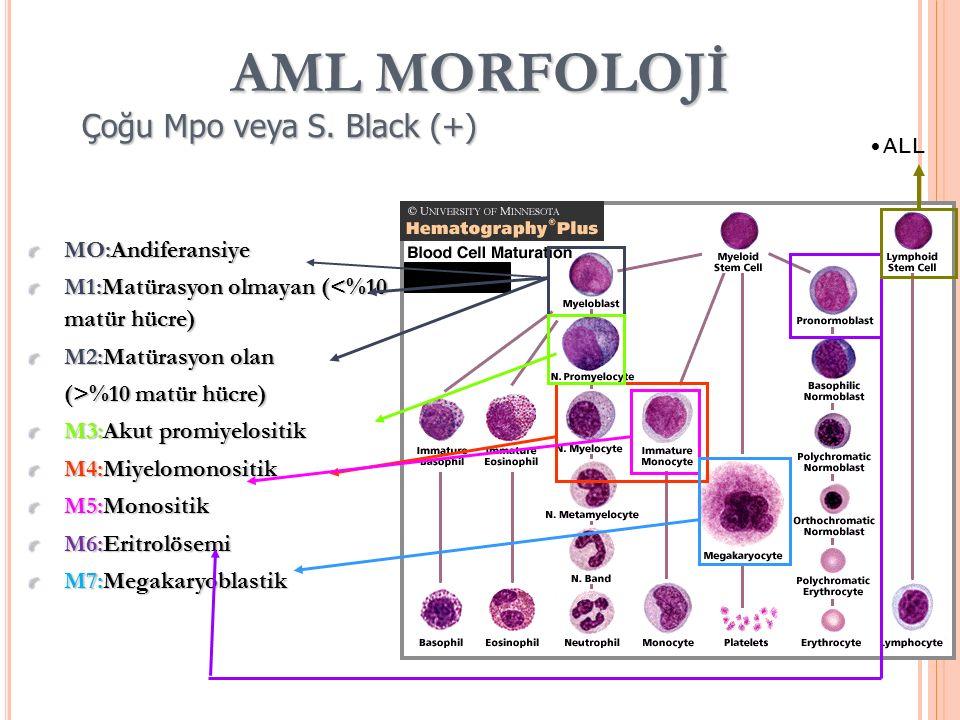 AML MORFOLOJİ MO:Andiferansiye M1:Matürasyon olmayan (<%10 matür hücre) M2:Matürasyon olan (>%10 matür hücre) M3:Akut promiyelositik M4:Miyelomonositik M5:Monositik M6:Eritrolösemi M7:Megakaryoblastik Çoğu Mpo veya S.