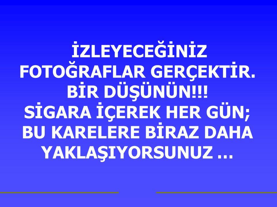 İZLEYECEĞİNİZ FOTOĞRAFLAR GERÇEKTİR. BİR DÜŞÜNÜN!!.